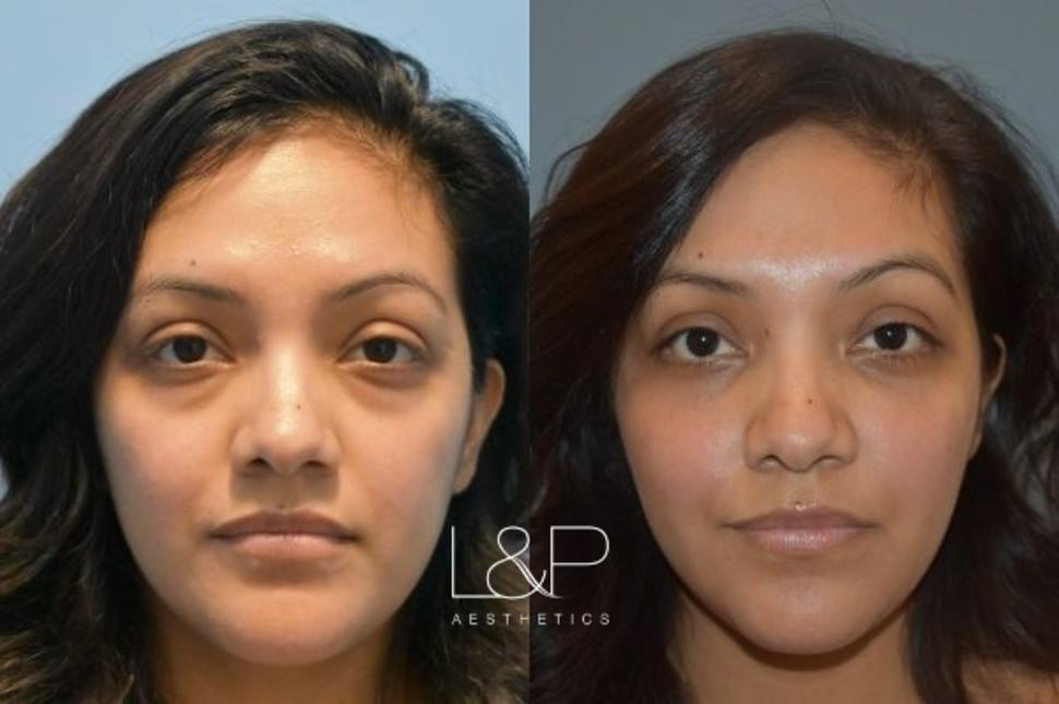 Blepharoplasty Case 1 Before & After Front | Palo Alto, California | L&P Aesthetics