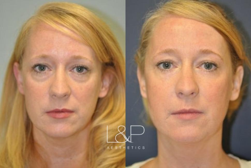 Blepharoplasty Case 4 Before & After Front | Palo Alto, California | L&P Aesthetics