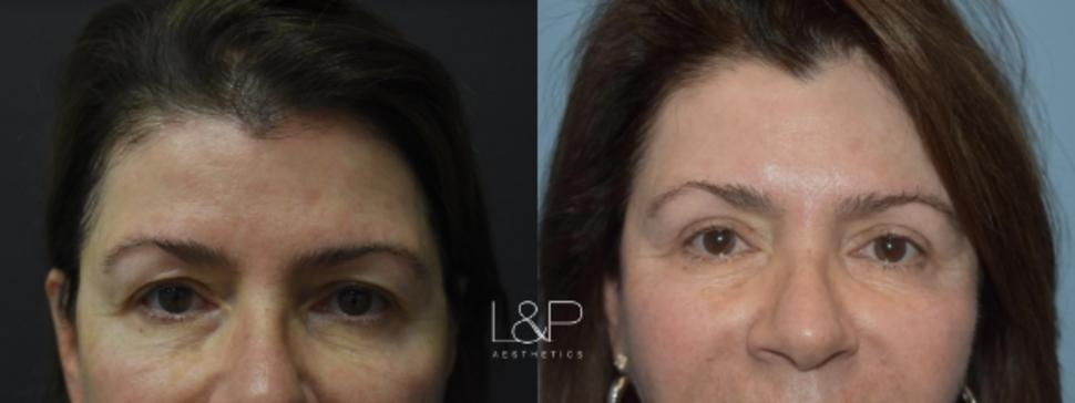 Blepharoplasty Case 7 Before & After Front | Palo Alto, California | L&P Aesthetics