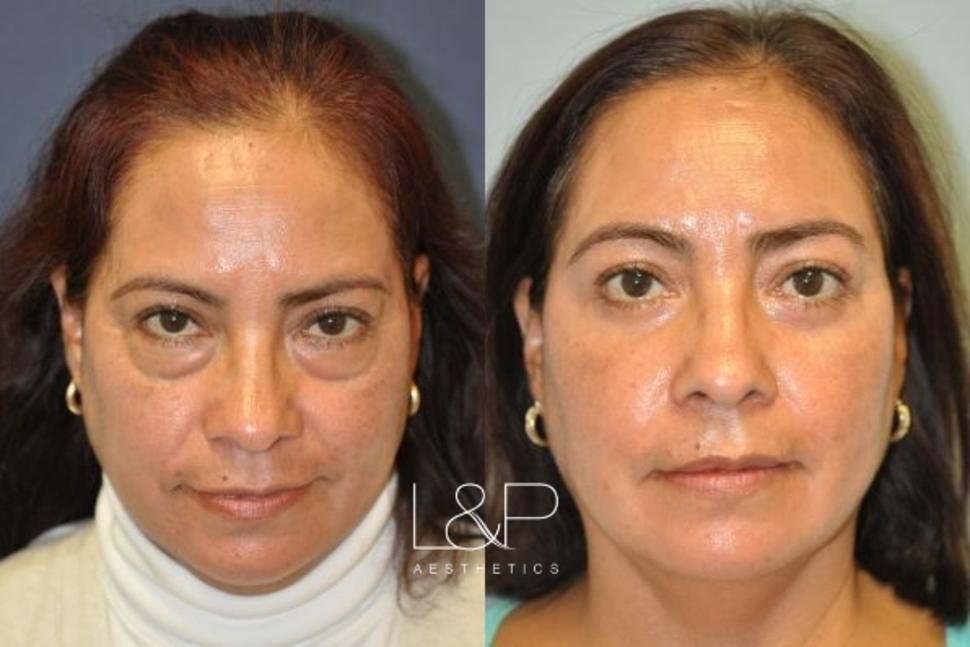 Blepharoplasty Case 8 Before & After Front | Palo Alto, California | L&P Aesthetics