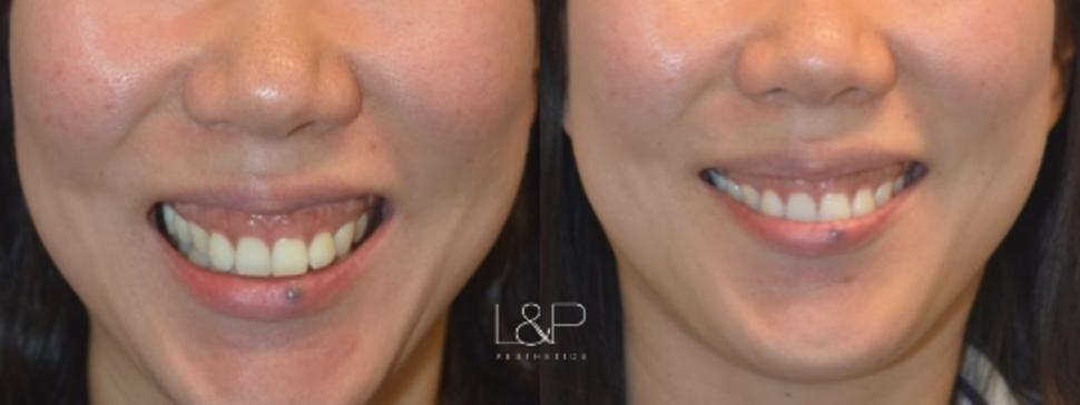 BOTOX® Cosmetic Case 102 Before & After Front | Palo Alto, California | L&P Aesthetics