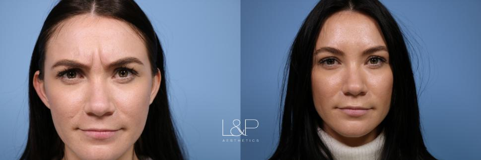 BOTOX® Cosmetic Case 122 Before & After Front | Palo Alto, California | L&P Aesthetics