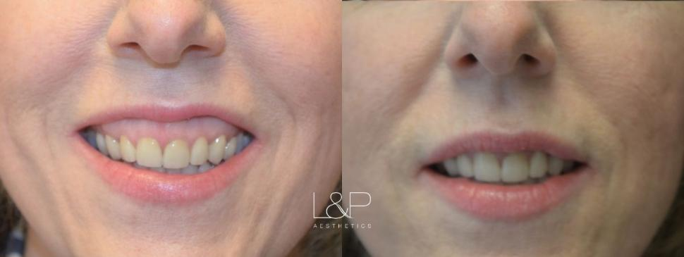 BOTOX® Cosmetic Case 99 Before & After Front | Palo Alto, California | L&P Aesthetics