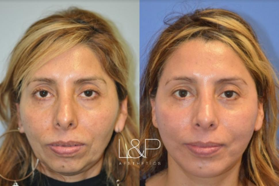 Chin Augmentation Case 15 Before & After Front | Palo Alto, California | L&P Aesthetics