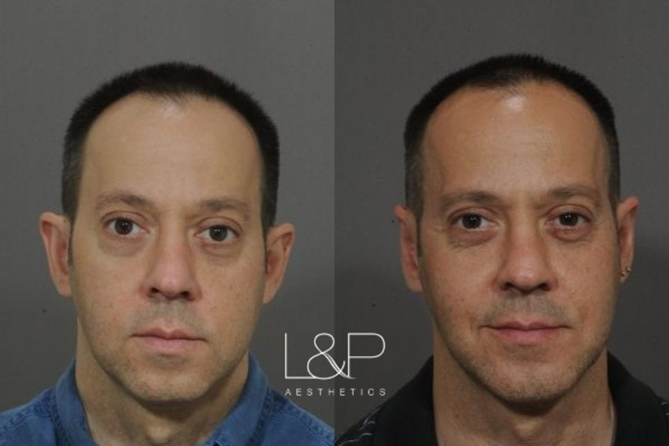 Chin Augmentation Case 17 Before & After Front | Palo Alto, California | L&P Aesthetics