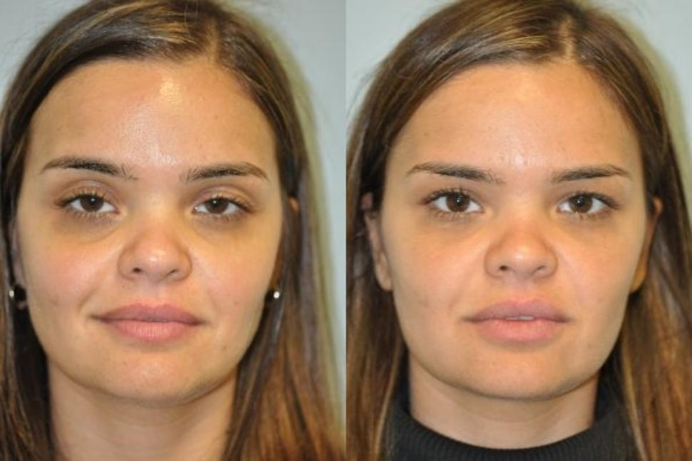 Facial Fillers Case 78 Before & After Front | Palo Alto & San Jose, California | L&P Aesthetics