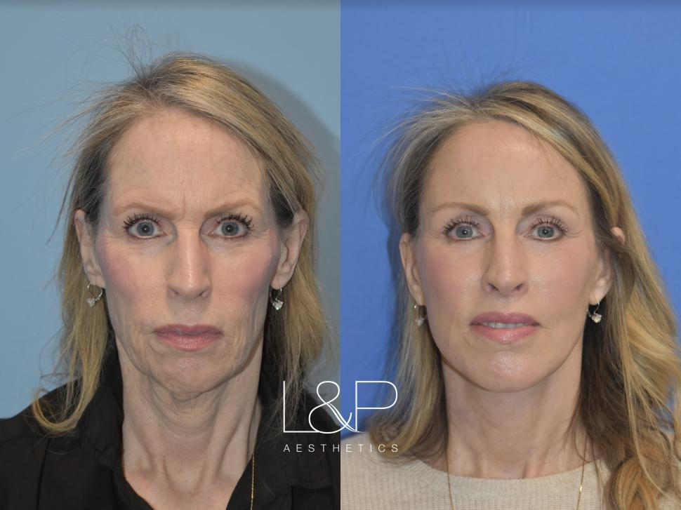 L&P Facelift and Neck Lift, Brow Lift, Fat Transfer, Chin Implant, Lip Lift & Laser Resurfacing