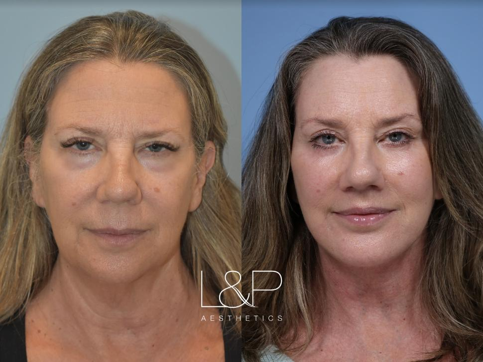 Revision facelift using our signature L&P technique