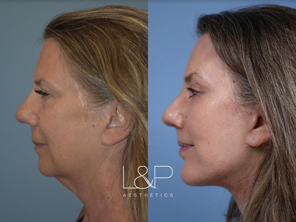 Brow Lift Case 116 Before & After Left Side | Palo Alto, California | L&P Aesthetics