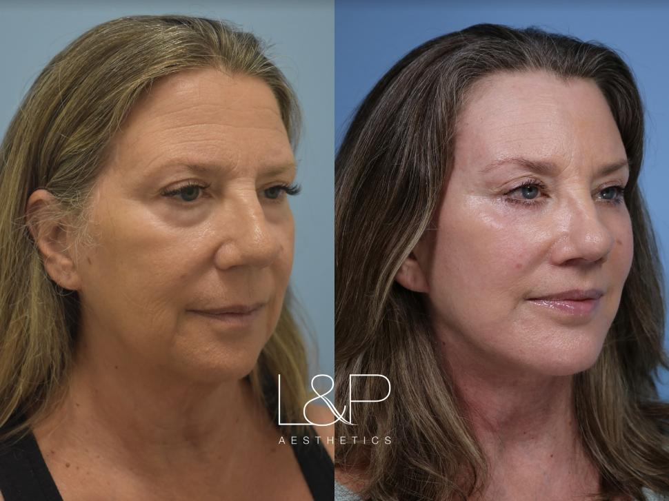 Brow Lift Case 116 Before & After Right Oblique | Palo Alto, California | L&P Aesthetics