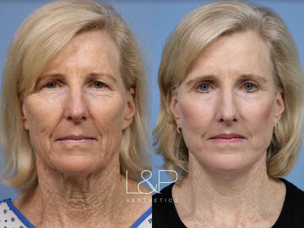 Laser Resurfacing (TRL) Case 117 Before & After Front | Palo Alto, California | L&P Aesthetics