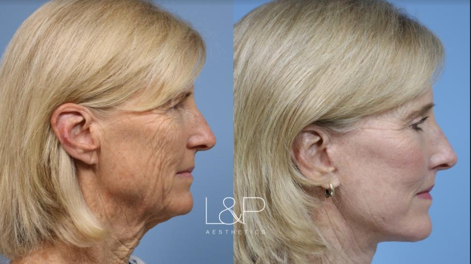 Brow Lift Case 117 Before & After Left Side | Palo Alto, California | L&P Aesthetics