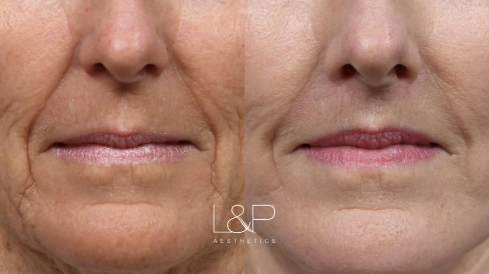 Brow Lift Case 117 Before & After Lip Lift | Palo Alto, California | L&P Aesthetics