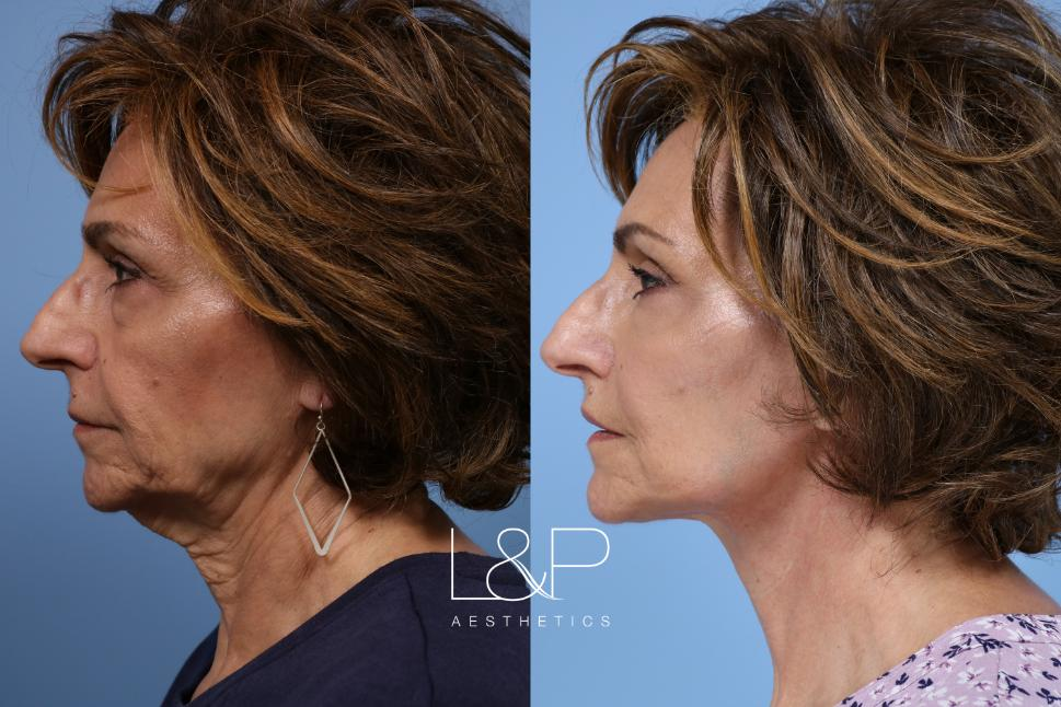 Laser Resurfacing (TRL) Case 153 Before & After Left Side | Palo Alto, California | L&P Aesthetics