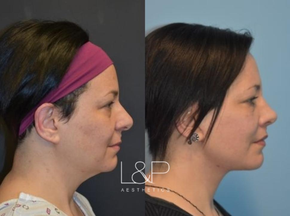 Rhinoplasty Case 26 Before & After Right Side | Palo Alto, California | L&P Aesthetics