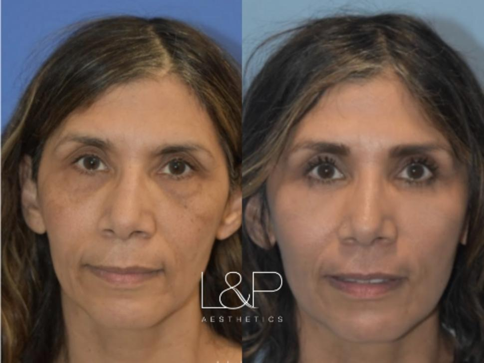 Fat Transfer Case 68 Before & After Front | Palo Alto, California | L&P Aesthetics
