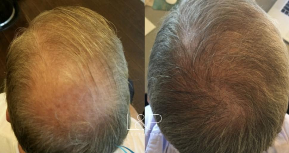Hair Restoration Case 62 Before & After View 1 | Palo Alto, California | L&P Aesthetics