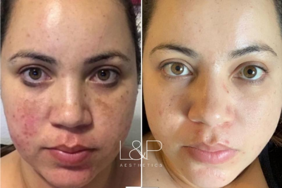 HALO™ / Forever Young BBL™ Case 108 Before & After Front | Palo Alto, California | L&P Aesthetics