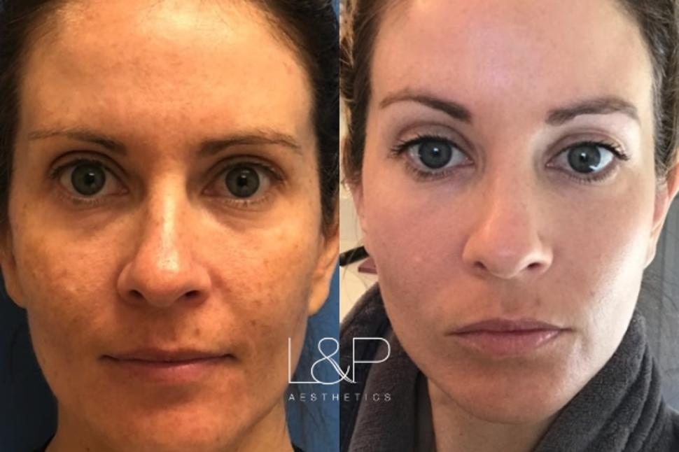 HALO™ / Forever Young BBL™ Case 109 Before & After Front | Palo Alto, California | L&P Aesthetics