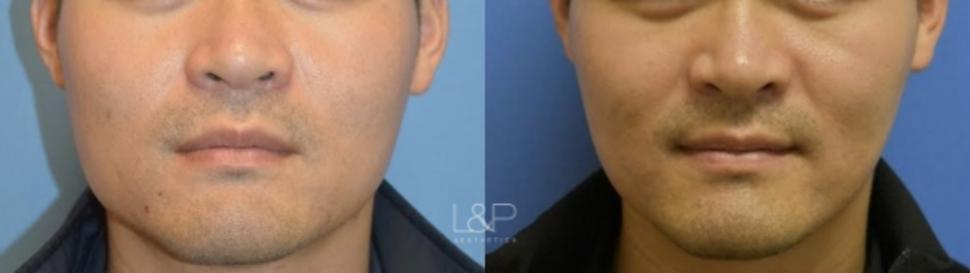 Jaw Slimming Case 110 Before & After Front | Palo Alto, California | L&P Aesthetics