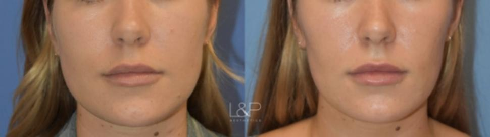 Jaw Slimming Case 111 Before & After Front | Palo Alto, California | L&P Aesthetics