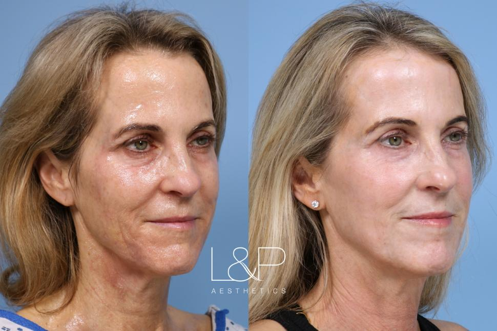Laser Resurfacing (TRL) Case 151 Before & After Right Oblique | Palo Alto, California | L&P Aesthetics