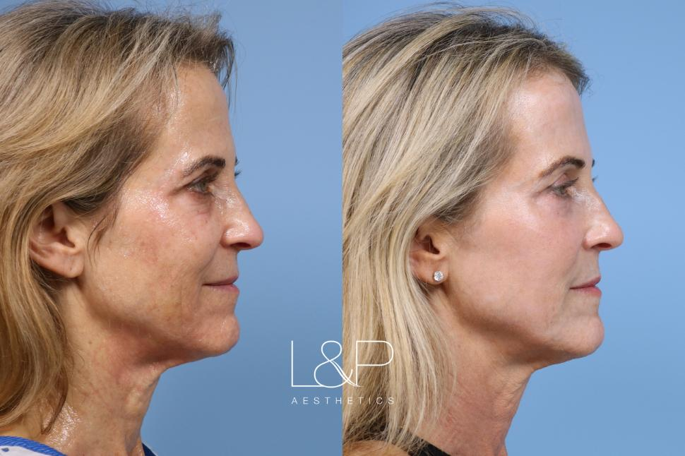 Laser Resurfacing (TRL) Case 151 Before & After Right Side | Palo Alto, California | L&P Aesthetics