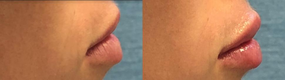Lip Augmentation Case 87 Before & After Right Side | Palo Alto, California | L&P Aesthetics