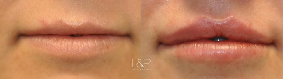 Lip Augmentation Case 92 Before & After Front | Palo Alto, California | L&P Aesthetics