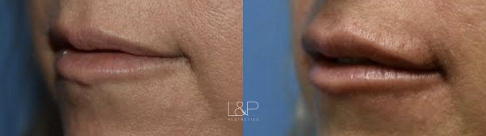 Lip Augmentation Case 95 Before & After Left Oblique | Palo Alto, California | L&P Aesthetics