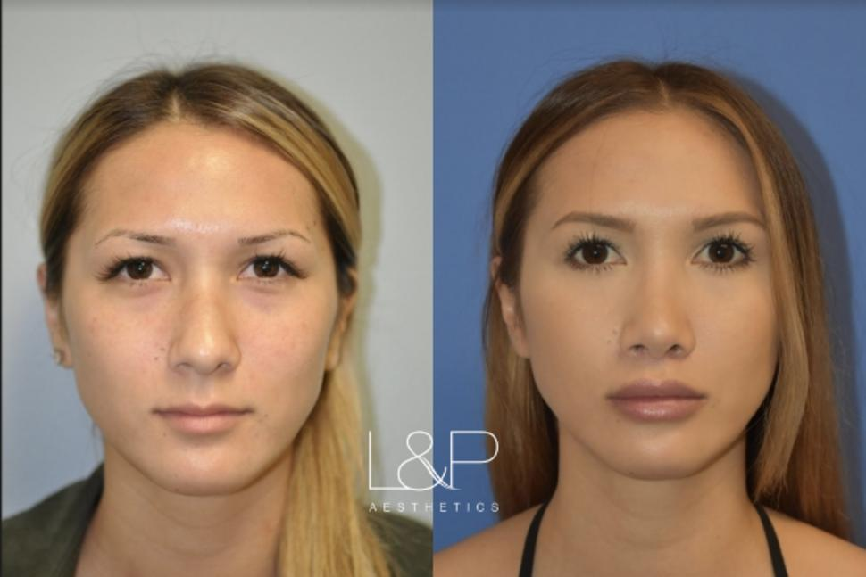 Lip Lift Case 71 Before & After Front | Palo Alto & San Jose, California | L&P Aesthetics