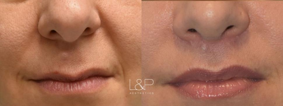 Lip Lift Case 73 Before & After Front | Palo Alto & San Jose, California | L&P Aesthetics
