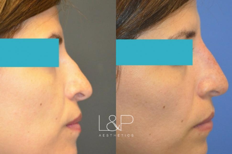Liquid Rhinoplasty Case 105 Before & After Right Side | Palo Alto, California | L&P Aesthetics