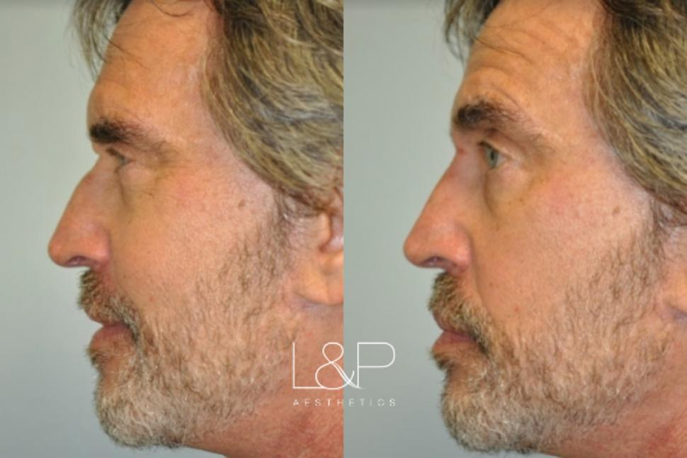Liquid Rhinoplasty Case 106 Before & After Left Side | Palo Alto, California | L&P Aesthetics