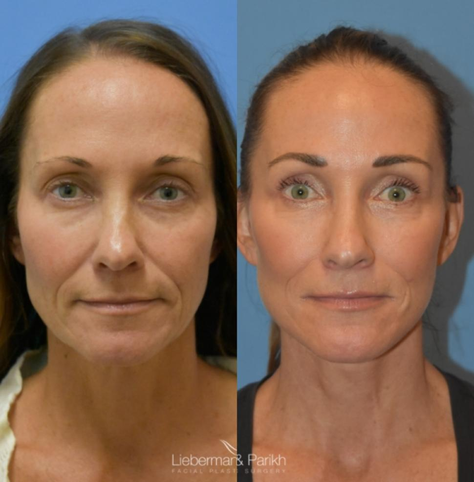 Facelift & Neck Lift Case 21 Before & After Front | Palo Alto, California | L&P Aesthetics