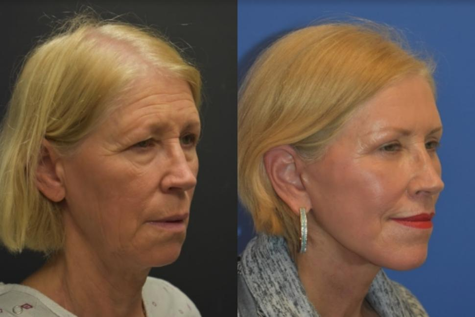 Facelift & Neck Lift Case 25 Before & After Right Oblique | Palo Alto, California | L&P Aesthetics