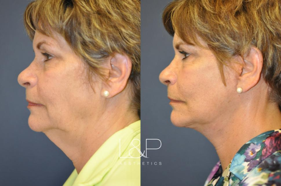 Before and After Midline Neck Lift