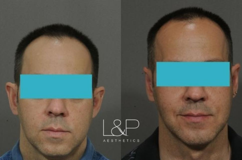 Otoplasty Case 60 Before & After Front | Palo Alto & San Jose, California | L&P Aesthetics