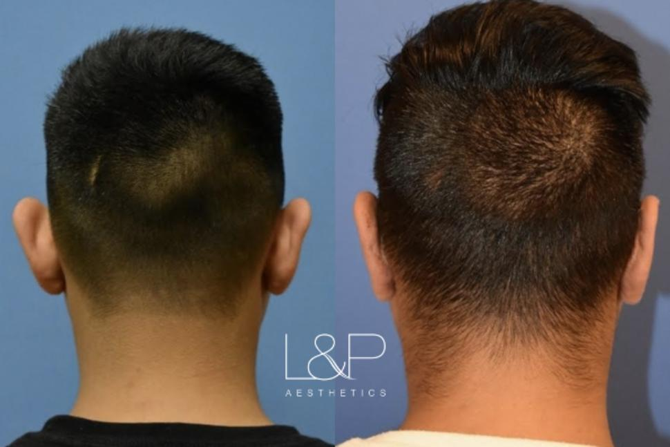 Otoplasty Case 61 Before & After Back | Palo Alto & San Jose, California | L&P Aesthetics