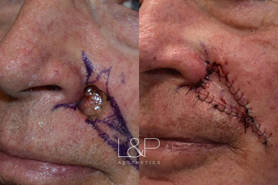 Skin Cancer Reconstructive Surgery