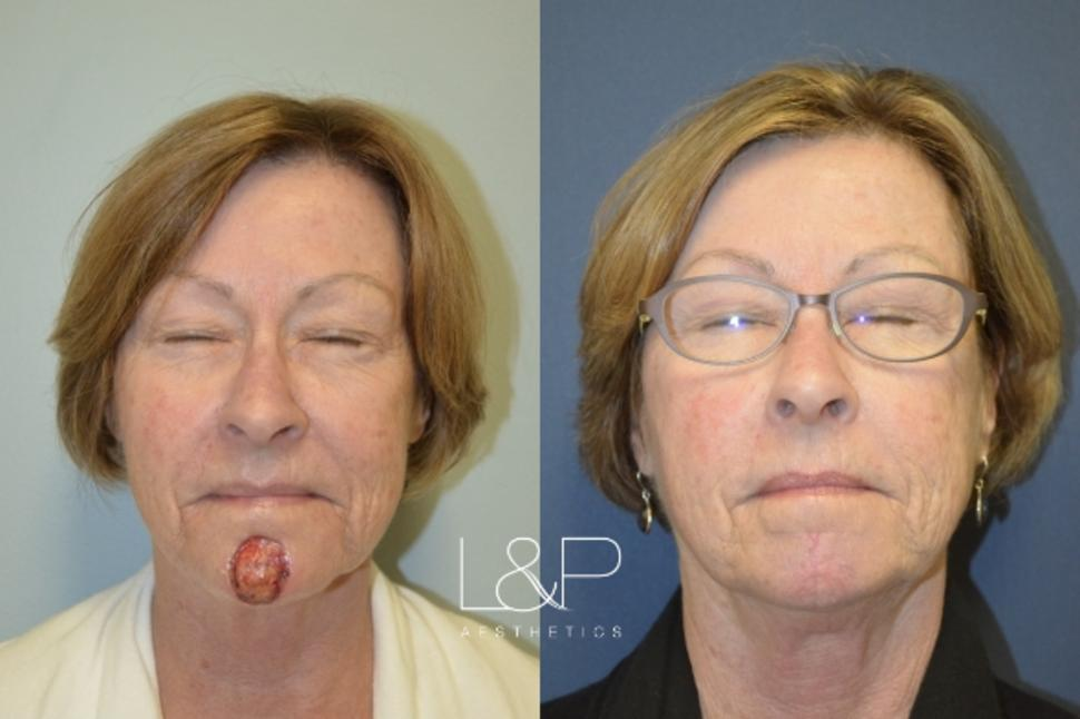 Reconstructive Surgery Case 44 Before & After Front | Palo Alto, California | L&P Aesthetics