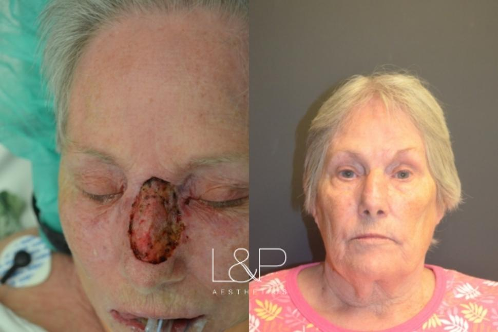 Reconstructive Surgery Case 46 Before & After Front | Palo Alto, California | L&P Aesthetics