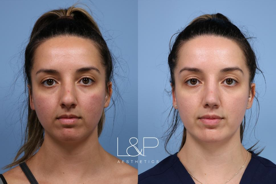 Rhinoplasty Case 161 Before & After Front | Palo Alto & San Jose, California | L&P Aesthetics