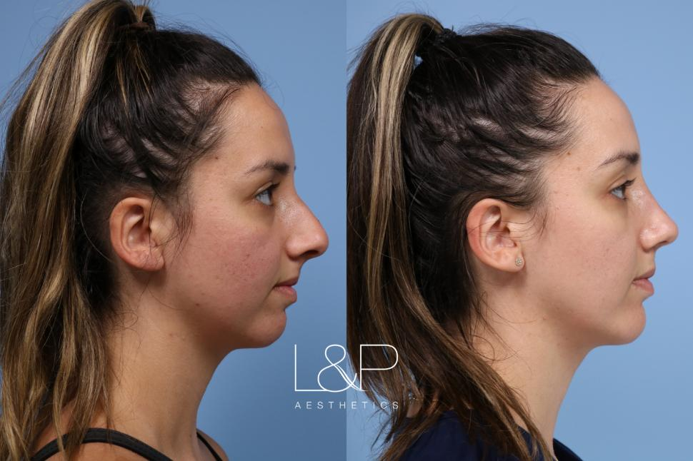 Rhinoplasty Case 161 Before & After Right Side | Palo Alto & San Jose, California | L&P Aesthetics