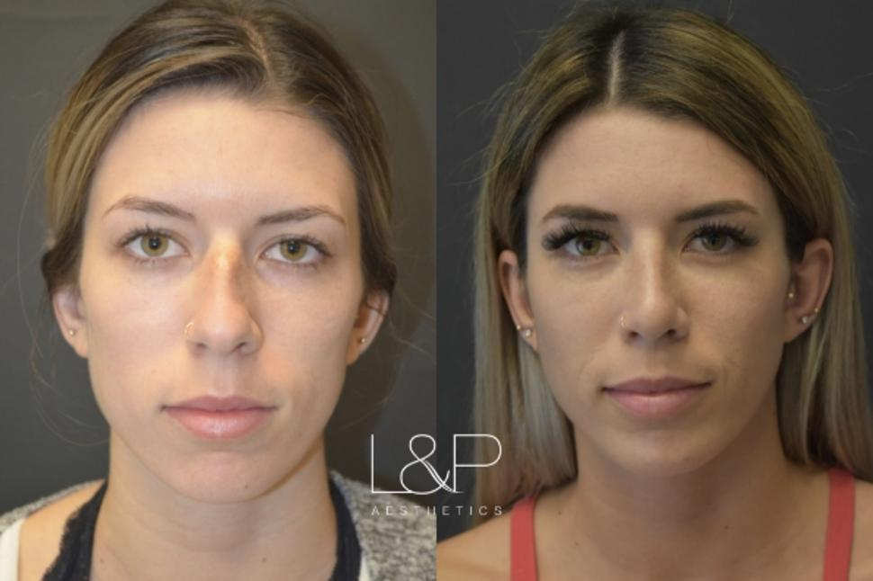 Rhinoplasty Case 48 Before & After Front | Palo Alto, California | L&P Aesthetics