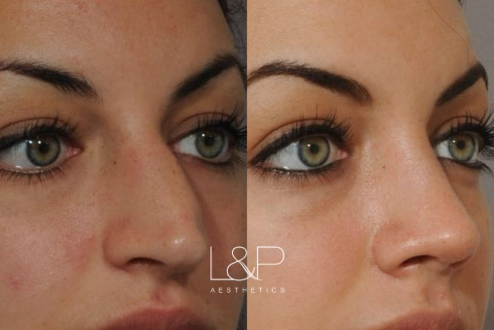 Rhinoplasty Case 50 Before & After Front | Palo Alto & San Jose, California | L&P Aesthetics