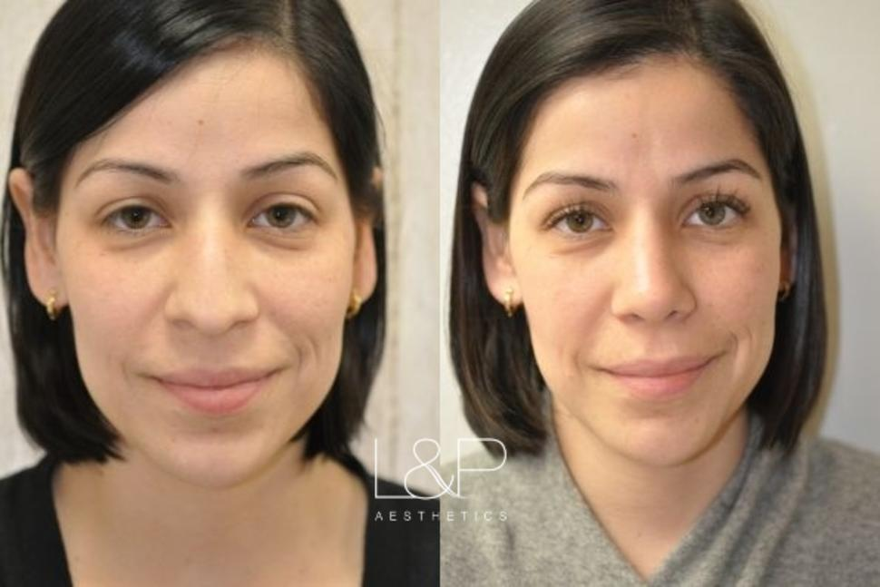 Rhinoplasty Case 53 Before & After Front | Palo Alto, California | L&P Aesthetics