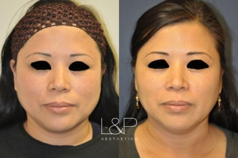 Ultherapy® Case 86 Before & After Front | Palo Alto, California | L&P Aesthetics